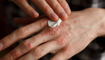 Łuszczyca jest chorobą przewlekłą, zapalną i co ważne - niezakaźną (fot. Shutterstock).