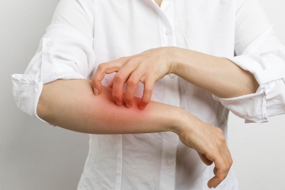 Leczenie świerzbu opiera się przede wszystkim na terapii za pomocą preparatów zewnętrznych. Występują one w różnych formach (fot. Shutterstock).