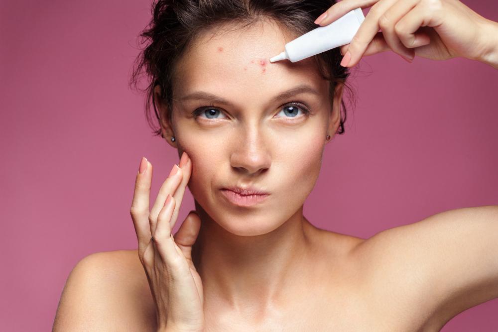 Maści, roztwory i zawiesiny są częstą postacią leku recepturowego na trądzik (fot. Shutterstock).
